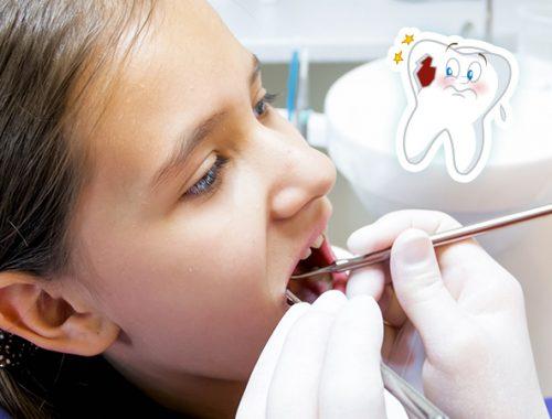 Dentino cariato